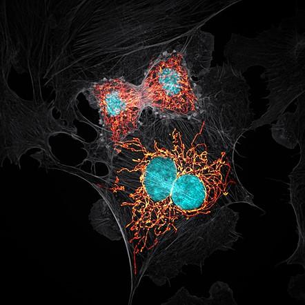 Onuncu — Jason M. Kirk, BPAE cells in telophase stage of mitosis